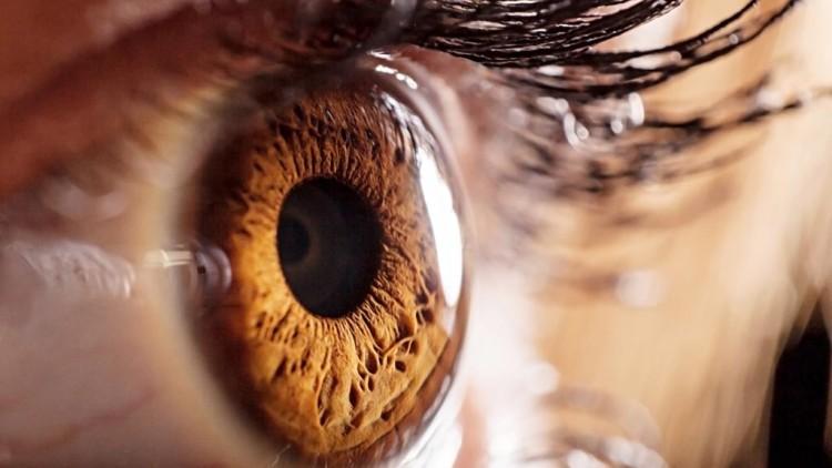Ceratocone: o que é, sintomas e como tratar