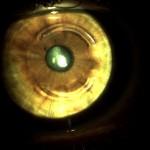 Ceratocone: implante de anel Ferrara para melhora da visão