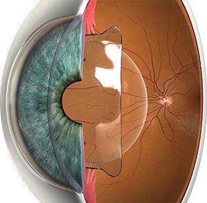 Implantes de Lentes para Alta Miopia – Artisan/Artiflex e ICL